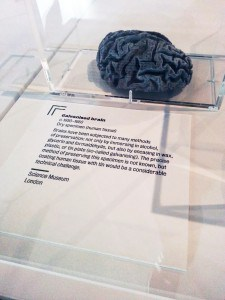 A galvanised brain